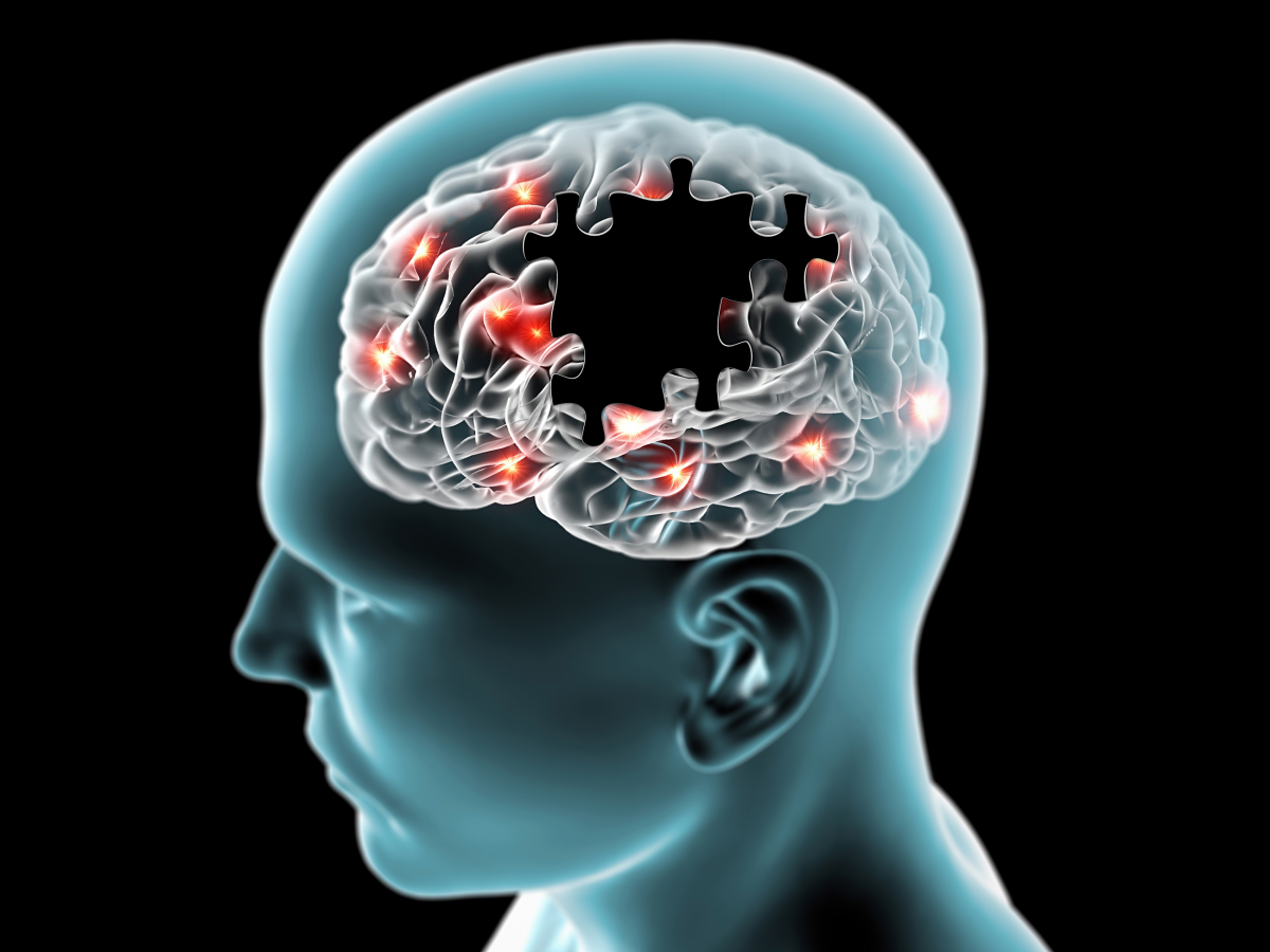 Cognitive Health and Impairment Systematic Literature Review
