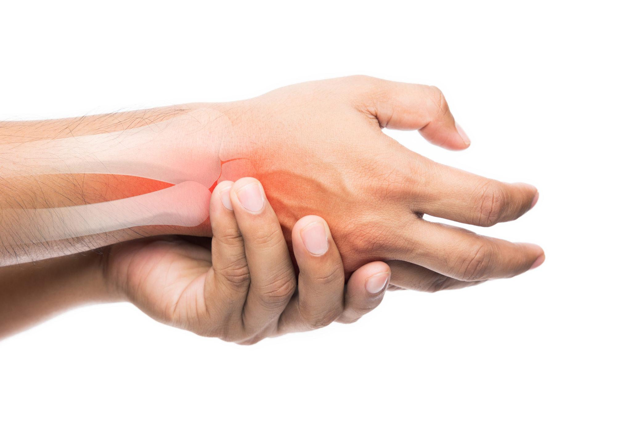 Rheumatoid Arthritis Systematic Literature Review